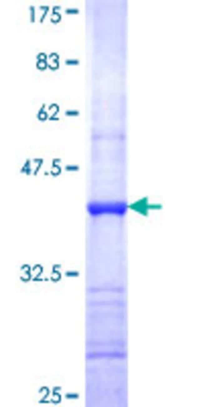 Abnova Human HSD3B7 Partial ORF (NP_079469, 101 a.a. - 209 a.a.) Recombinant