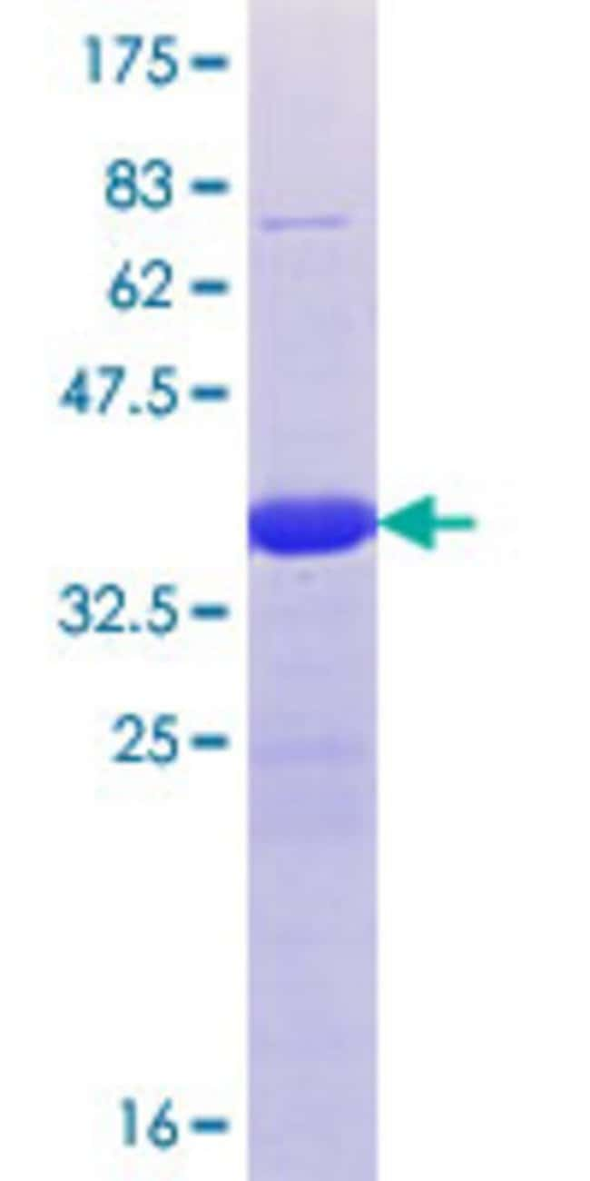 Abnova™Human CXXC6 Partial ORF (NP_085128.1, 2038 a.a. - 2136 a.a.) Recombinant Protein with GST-tag at N-terminal 25μg Abnova™Human CXXC6 Partial ORF (NP_085128.1, 2038 a.a. - 2136 a.a.) Recombinant Protein with GST-tag at N-terminal