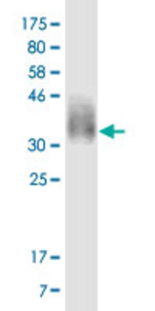 CD276 (28-238) Mouse anti-Human, Clone: 7C10, Abnova 100μg; Unlabeled:Antibodies