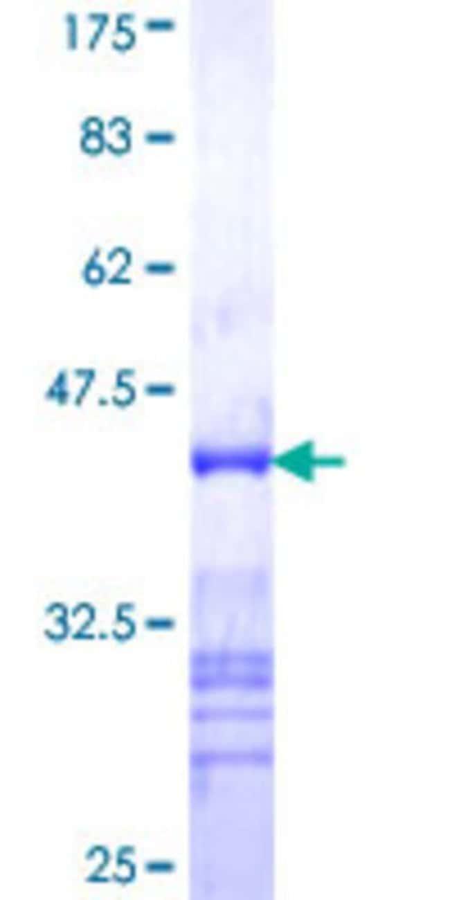 Abnova™Human TSGA10 Partial ORF (NP_079520, 599 a.a. - 698 a.a.) Recombinant Protein with GST-tag at N-terminal 10μg Abnova™Human TSGA10 Partial ORF (NP_079520, 599 a.a. - 698 a.a.) Recombinant Protein with GST-tag at N-terminal