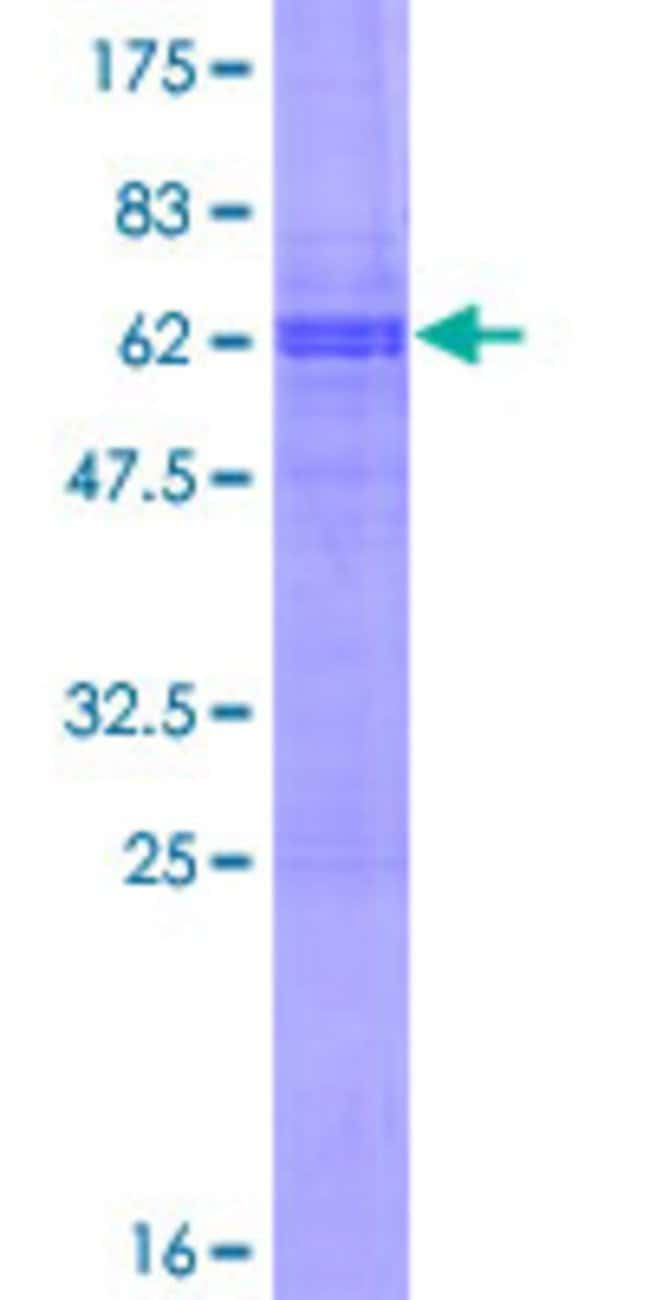 Abnova™Human SNIP Full-length ORF (AAH33233.1, 1 a.a. - 257 a.a.) Recombinant Protein with GST-tag at N-terminal 25μg Abnova™Human SNIP Full-length ORF (AAH33233.1, 1 a.a. - 257 a.a.) Recombinant Protein with GST-tag at N-terminal