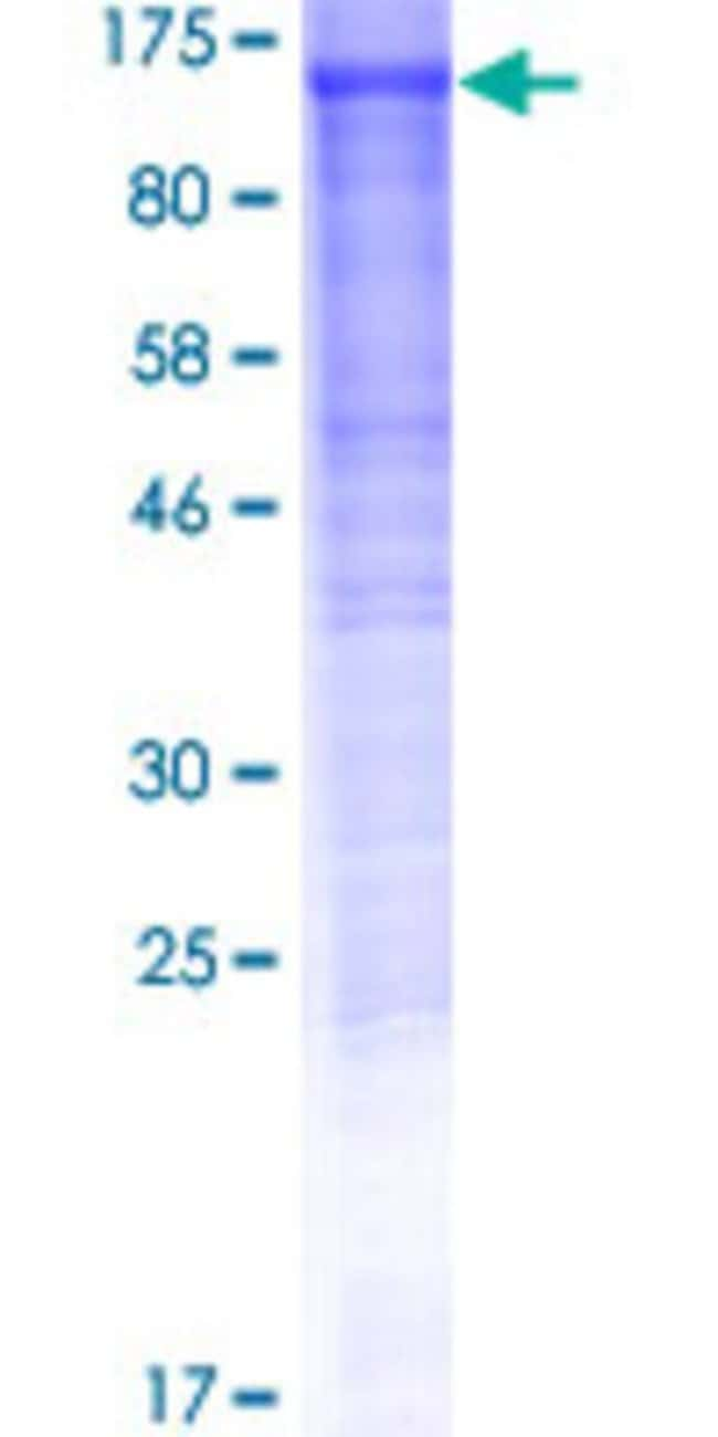 Abnova™Human DDHD1 Full-length ORF (NP_085140.1, 1 a.a. - 872 a.a.) Recombinant Protein with GST-tag at N-terminal 25μg Abnova™Human DDHD1 Full-length ORF (NP_085140.1, 1 a.a. - 872 a.a.) Recombinant Protein with GST-tag at N-terminal