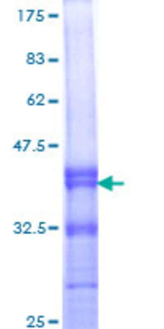 AbnovaHuman APOL3 Partial ORF (NP_663615, 240 a.a. - 336 a.a.) Recombinant