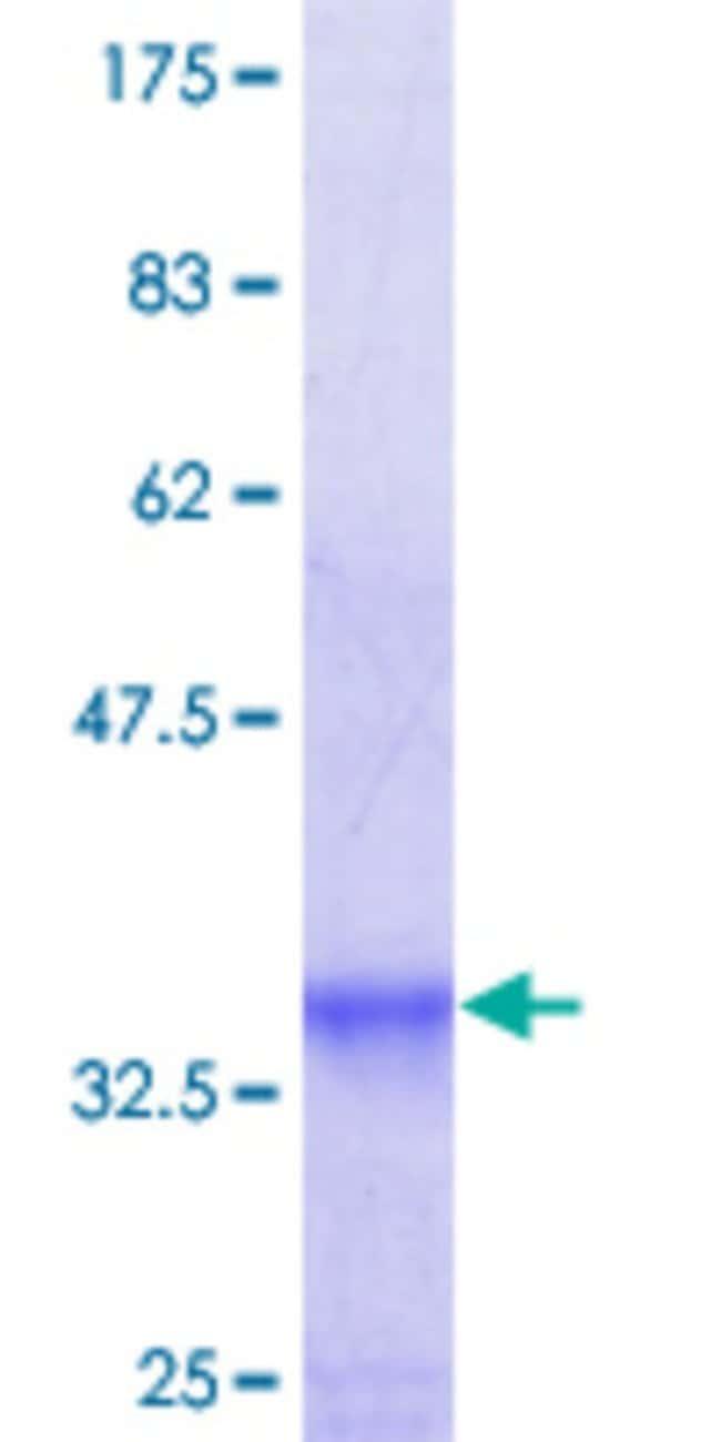 Abnova™Human TAS1R1 Partial ORF (NP_619642, 281 a.a. - 380 a.a.) Recombinant Protein with GST-tag at N-terminal 10μg Abnova™Human TAS1R1 Partial ORF (NP_619642, 281 a.a. - 380 a.a.) Recombinant Protein with GST-tag at N-terminal