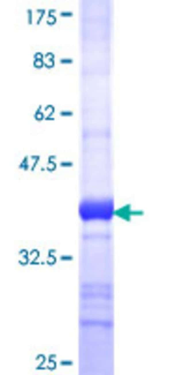 Abnova™Human ILKAP Partial ORF (NP_110395, 293 a.a. - 392 a.a.) Recombinant Protein with GST-tag at N-terminal 10μg Abnova™Human ILKAP Partial ORF (NP_110395, 293 a.a. - 392 a.a.) Recombinant Protein with GST-tag at N-terminal