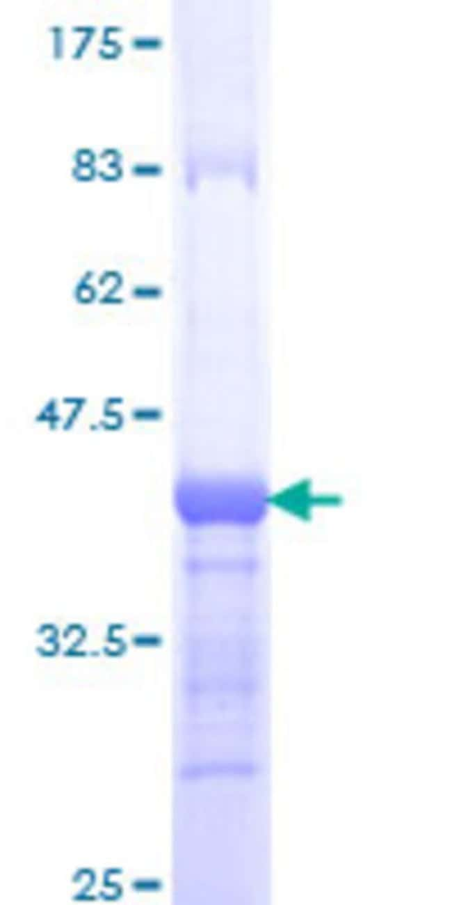 Abnova™Human COLEC12 Partial ORF (AAH60789, 101 a.a. - 200 a.a.) Recombinant Protein with GST-tag at N-terminal 10μg Abnova™Human COLEC12 Partial ORF (AAH60789, 101 a.a. - 200 a.a.) Recombinant Protein with GST-tag at N-terminal