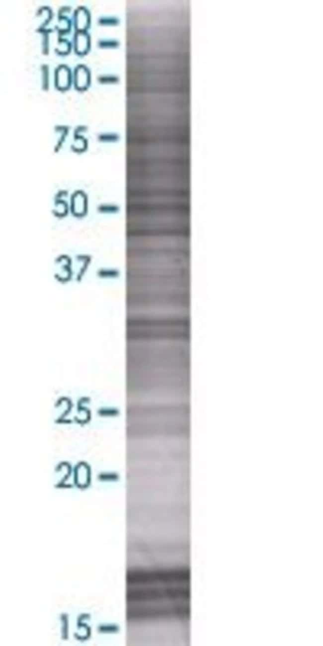 Abnova GRINL1A 293T Cell Transient Overexpression Lysate (Denatured) 100µL:Life