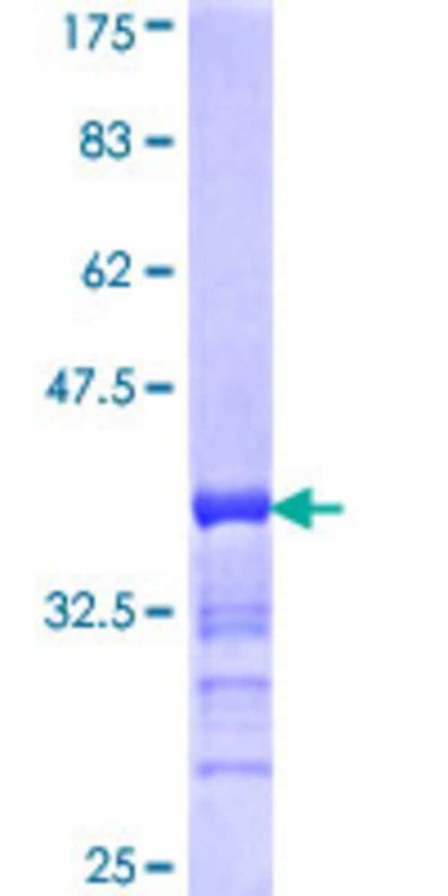 Abnova™Human RSHL1 Partial ORF (NP_110412, 21 a.a. - 113 a.a.) Recombinant Protein with GST-tag at N-terminal 25μg Abnova™Human RSHL1 Partial ORF (NP_110412, 21 a.a. - 113 a.a.) Recombinant Protein with GST-tag at N-terminal