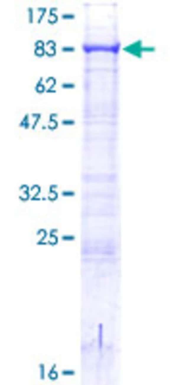 AbnovaHuman ACSBG2 Full-length ORF (AAH90046.1, 1 a.a. - 666 a.a.) Recombinant