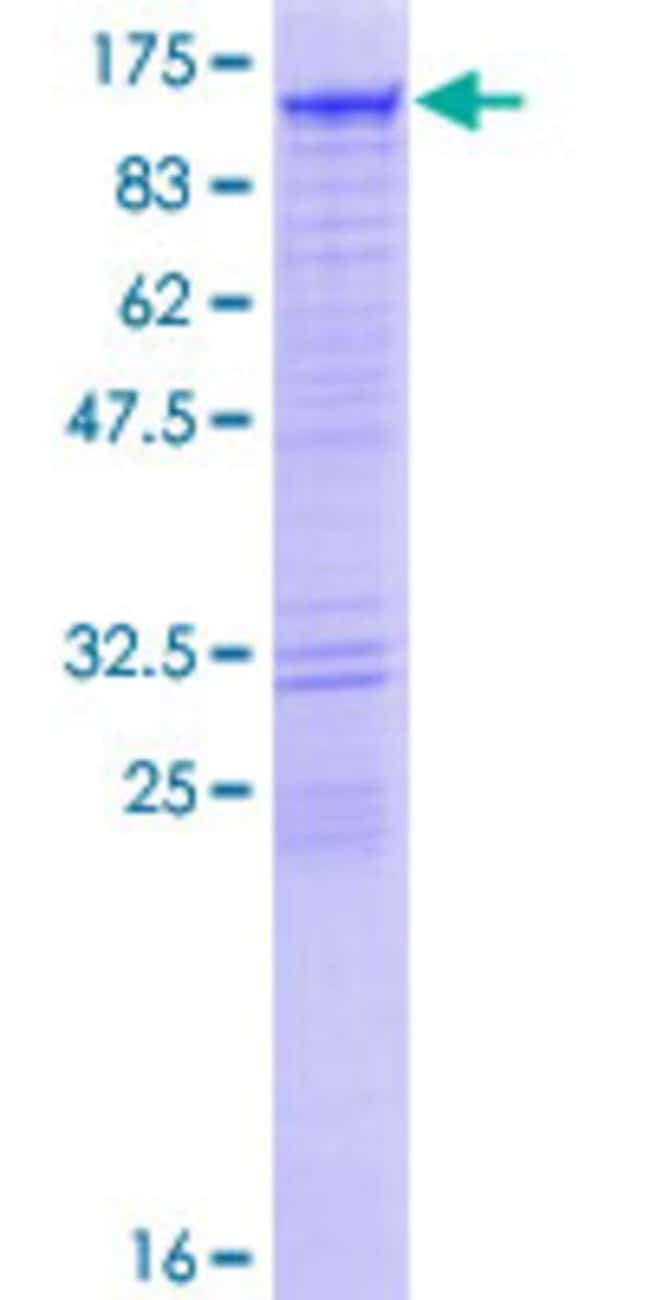 Abnova™Human DIAPH3 Full-length ORF (NP_112194.2, 1 a.a. - 849 a.a.) Recombinant Protein with GST-tag at N-terminal 10μg Abnova™Human DIAPH3 Full-length ORF (NP_112194.2, 1 a.a. - 849 a.a.) Recombinant Protein with GST-tag at N-terminal
