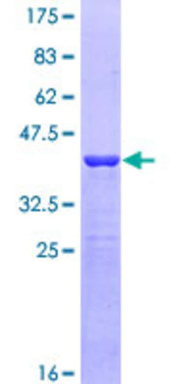 Abnova™Human DIAPH3 Partial ORF (NP_112194, 632 a.a. - 729 a.a.) Recombinant Protein with GST-tag at N-terminal 25μg Abnova™Human DIAPH3 Partial ORF (NP_112194, 632 a.a. - 729 a.a.) Recombinant Protein with GST-tag at N-terminal