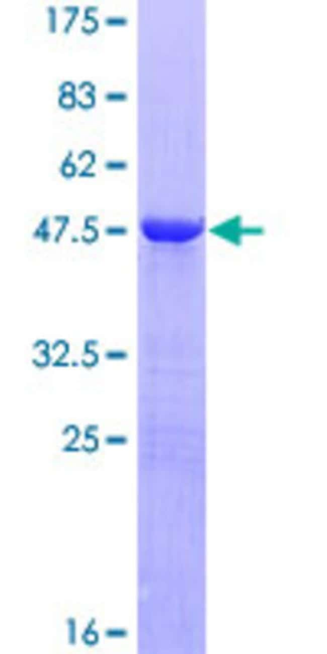Abnova™Human PPP1R14C Full-length ORF (AAH15773.1, 1 a.a. - 165 a.a.) Recombinant Protein with GST-tag at N-terminal 25μg Abnova™Human PPP1R14C Full-length ORF (AAH15773.1, 1 a.a. - 165 a.a.) Recombinant Protein with GST-tag at N-terminal
