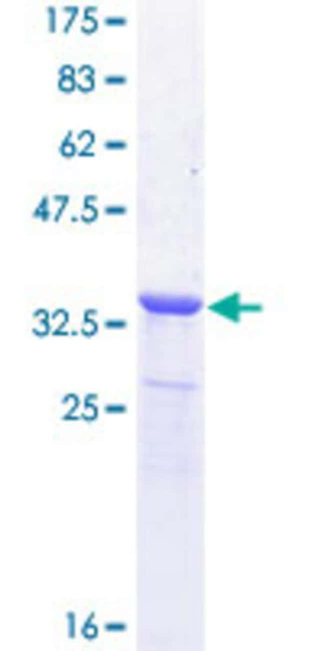 Abnova™Human NETO2 Partial ORF (NP_060562.3, 426 a.a. - 525 a.a.) Recombinant Protein with GST-tag at N-terminal 10μg Abnova™Human NETO2 Partial ORF (NP_060562.3, 426 a.a. - 525 a.a.) Recombinant Protein with GST-tag at N-terminal