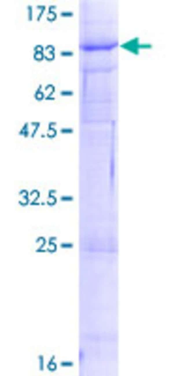 Abnova™Human VANGL1 Full-length ORF (NP_620409.1, 1 a.a. - 524 a.a.) Recombinant Protein with GST-tag at N-terminal 10μg Abnova™Human VANGL1 Full-length ORF (NP_620409.1, 1 a.a. - 524 a.a.) Recombinant Protein with GST-tag at N-terminal