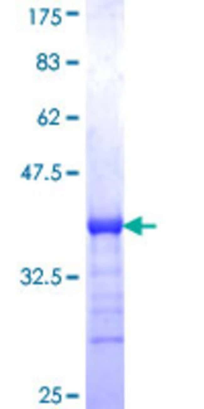 Abnova™Human Sharpin Partial ORF (NP_112236, 51 a.a. - 148 a.a.) Recombinant Protein with GST-tag at N-terminal 25μg Abnova™Human Sharpin Partial ORF (NP_112236, 51 a.a. - 148 a.a.) Recombinant Protein with GST-tag at N-terminal