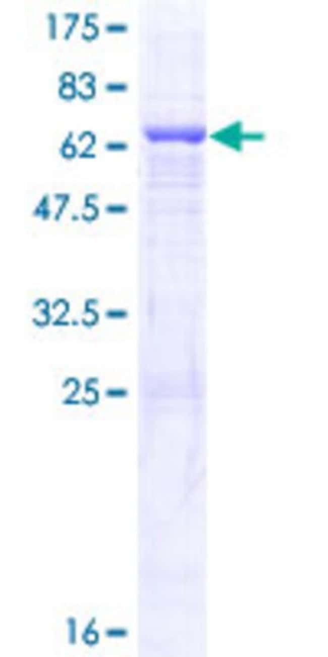 Abnova™Human QTRT1 Full-length ORF (AAH15350.1, 1 a.a. - 358 a.a.) Recombinant Protein with GST-tag at N-terminal 10μg Abnova™Human QTRT1 Full-length ORF (AAH15350.1, 1 a.a. - 358 a.a.) Recombinant Protein with GST-tag at N-terminal