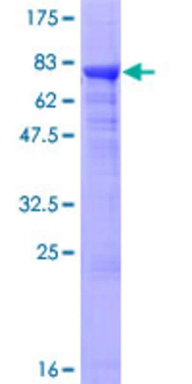 AbnovaHuman ADPGK Full-length ORF (AAH06112.1, 1 a.a. - 497 a.a.) Recombinant