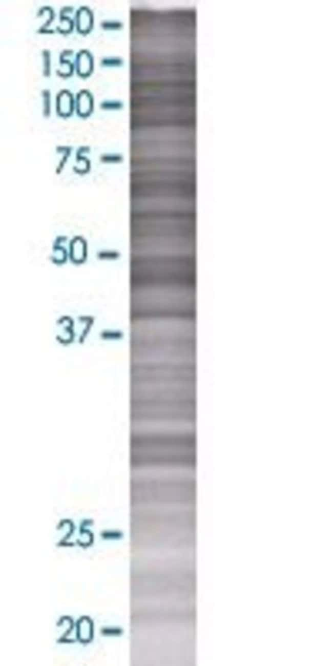 AbnovaADPGK 293T Cell Transient Overexpression Lysate (Denatured) 100μL:Protein