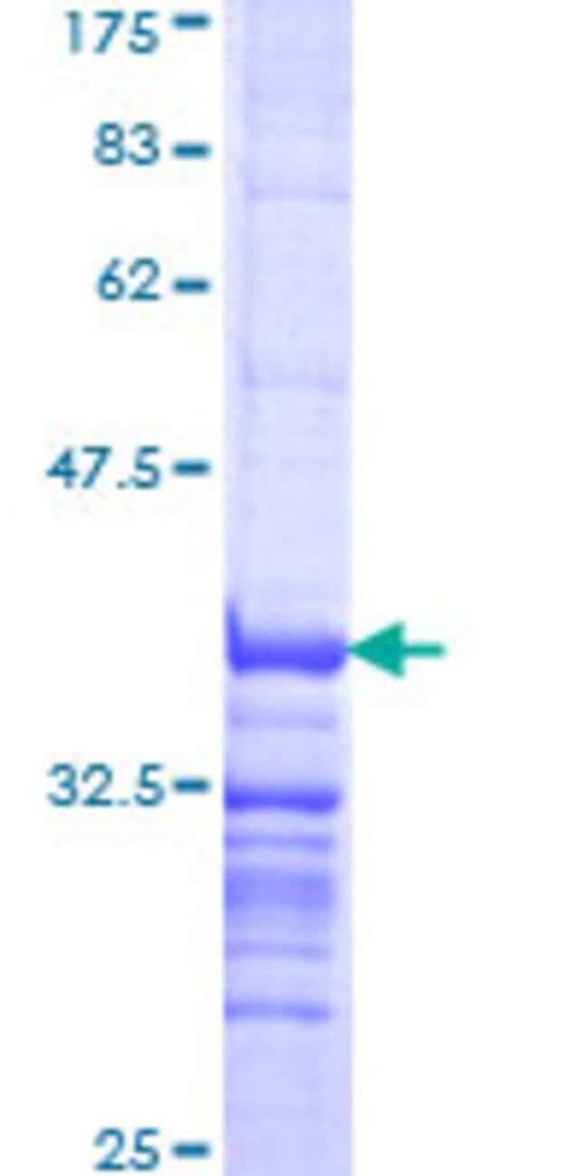 Abnova™Human RAB33B Partial ORF (NP_112586, 117 a.a. - 206 a.a.) Recombinant Protein with GST-tag at N-terminal 10μg Abnova™Human RAB33B Partial ORF (NP_112586, 117 a.a. - 206 a.a.) Recombinant Protein with GST-tag at N-terminal