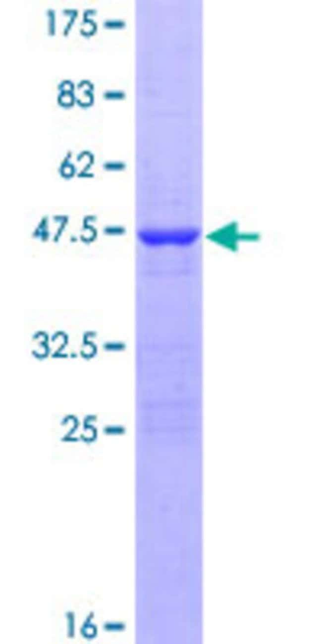Abnova™Human DKFZP761H1710 Full-length ORF (AAH16958.1, 1 a.a. - 180 a.a.) Recombinant Protein with GST-tag at N-terminal 25μg Abnova™Human DKFZP761H1710 Full-length ORF (AAH16958.1, 1 a.a. - 180 a.a.) Recombinant Protein with GST-tag at N-terminal