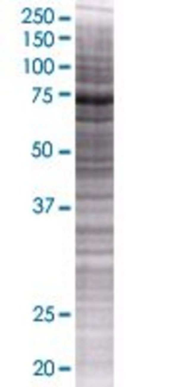 AbnovaARHGAP24 293T Cell Transient Overexpression Lysate (Denatured) (T01)