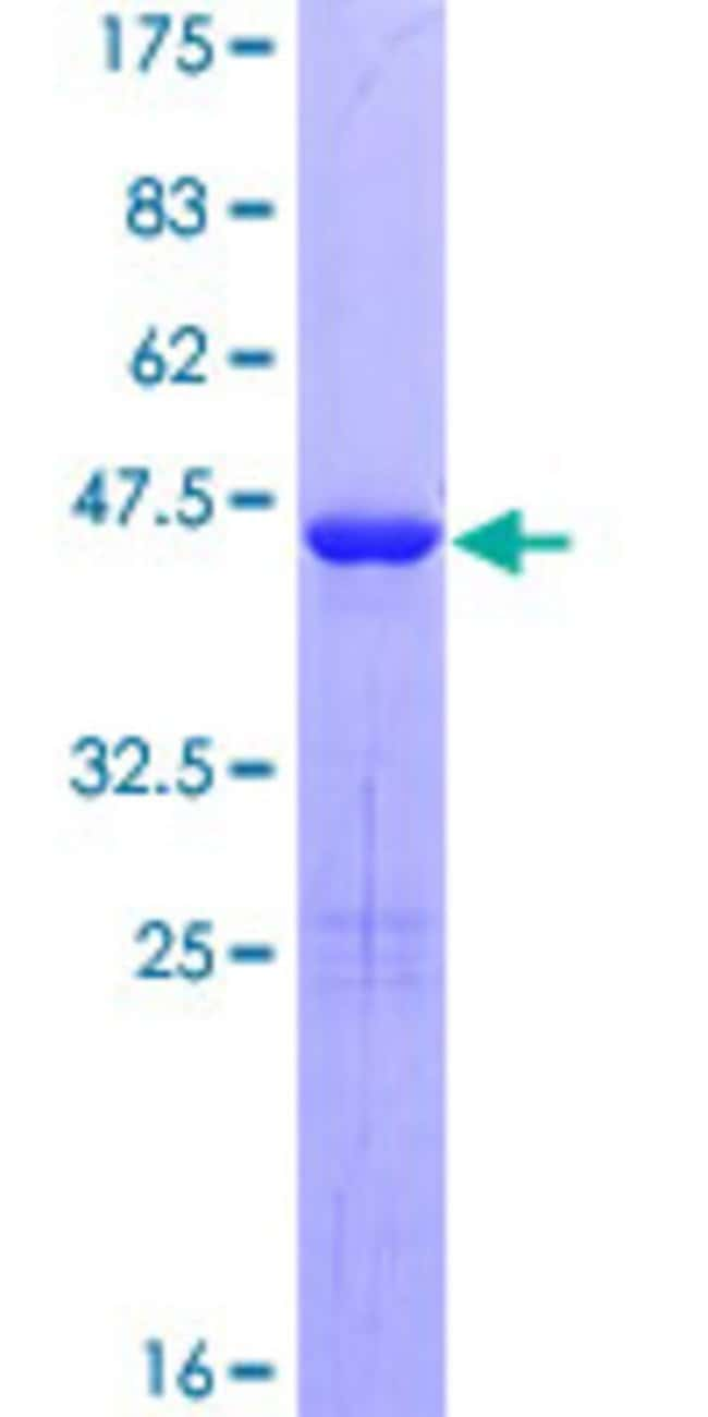 Abnova™Human C9orf58 Full-length ORF (NP_113614.1, 1 a.a. - 150 a.a.) Recombinant Protein with GST-tag at N-terminal 10μg Abnova™Human C9orf58 Full-length ORF (NP_113614.1, 1 a.a. - 150 a.a.) Recombinant Protein with GST-tag at N-terminal