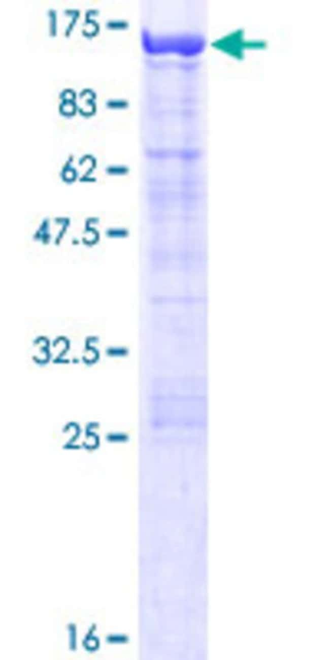 Abnova™Human COG3 Full-length ORF (NP_113619.1, 1 a.a. - 828 a.a.) Recombinant Protein with GST-tag at N-terminal 10μg Abnova™Human COG3 Full-length ORF (NP_113619.1, 1 a.a. - 828 a.a.) Recombinant Protein with GST-tag at N-terminal
