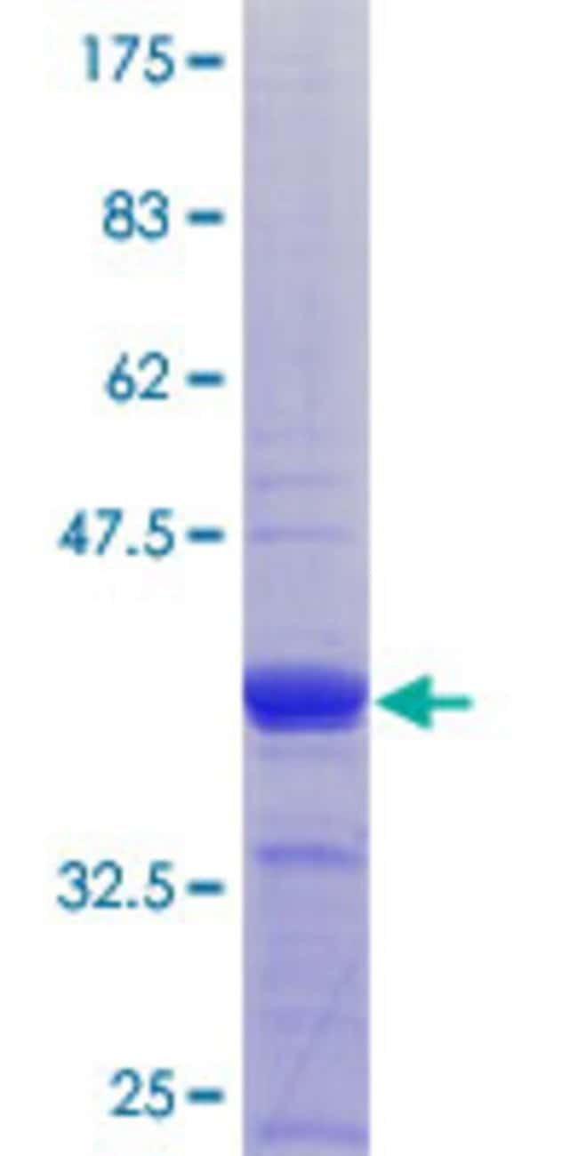 Abnova™Human COG3 Partial ORF (NP_113619.1, 25 a.a. - 124 a.a.) Recombinant Protein with GST-tag at N-terminal 10μg Abnova™Human COG3 Partial ORF (NP_113619.1, 25 a.a. - 124 a.a.) Recombinant Protein with GST-tag at N-terminal