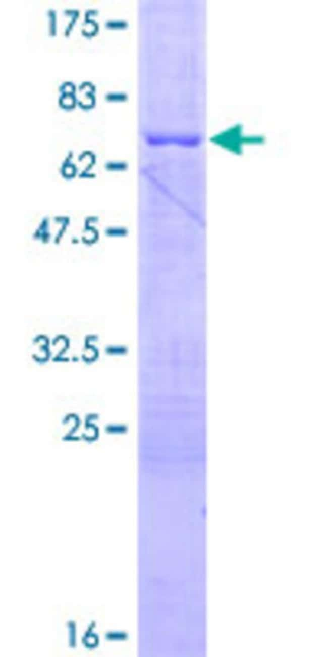 Abnova™Human BCL2L12 Full-length ORF (NP_001035758.1, 1 a.a. - 333 a.a.) Recombinant Protein with GST-tag at N-terminal 25μg Abnova™Human BCL2L12 Full-length ORF (NP_001035758.1, 1 a.a. - 333 a.a.) Recombinant Protein with GST-tag at N-terminal