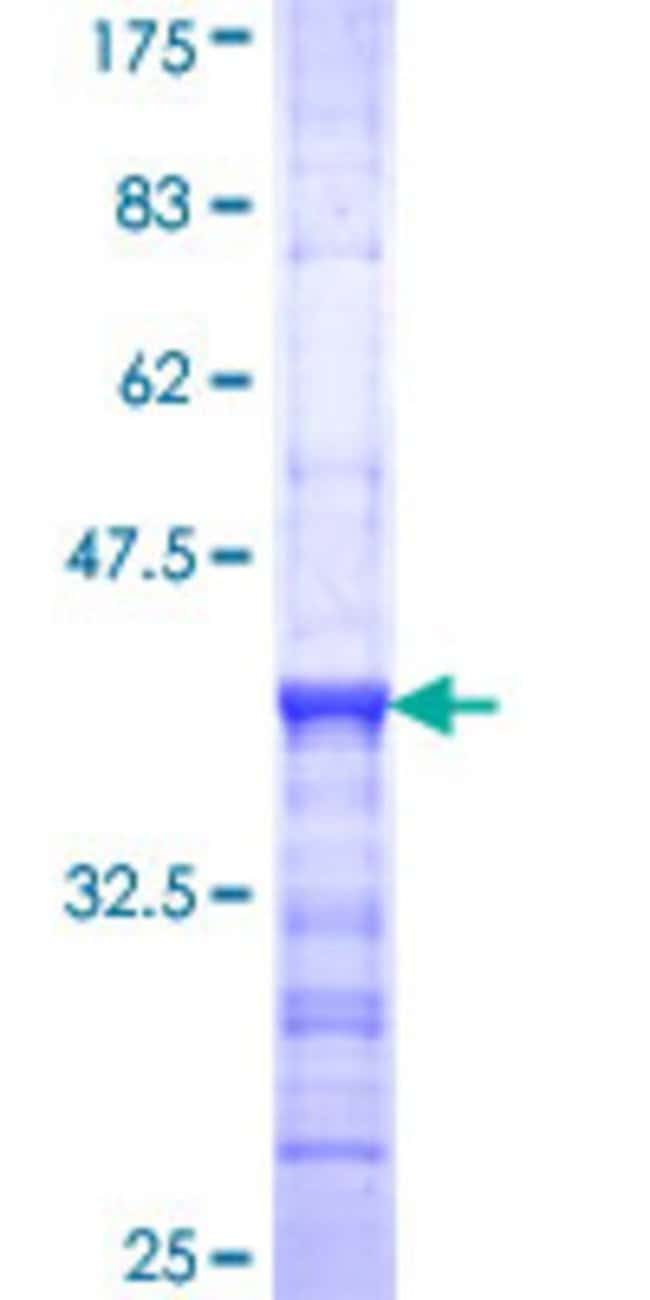 Abnova™Human CCM2 Partial ORF (NP_113631, 2 a.a. - 100 a.a.) Recombinant Protein with GST-tag at N-terminal 10μg Abnova™Human CCM2 Partial ORF (NP_113631, 2 a.a. - 100 a.a.) Recombinant Protein with GST-tag at N-terminal