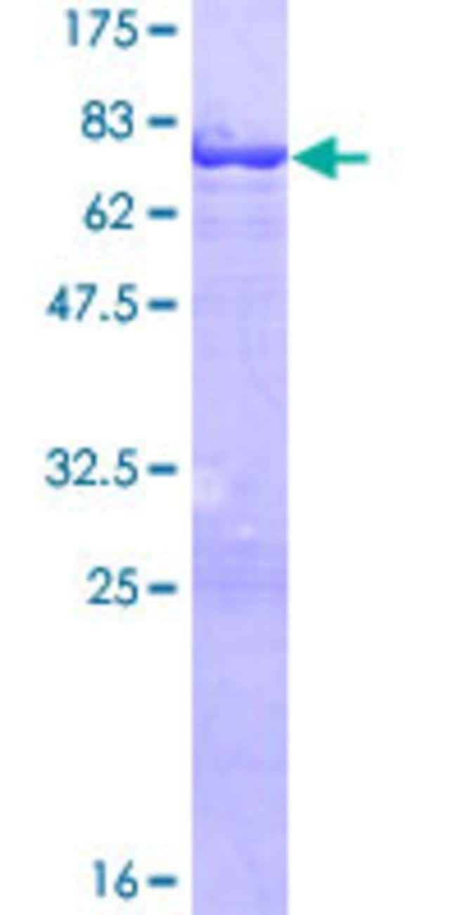Abnova™ Human TEKT1 Full-length ORF (NP_444515.1, 1 a.a. - 418 a.a.) Recombinant Protein with GST-tag at N-terminal 25μg Abnova™ Human TEKT1 Full-length ORF (NP_444515.1, 1 a.a. - 418 a.a.) Recombinant Protein with GST-tag at N-terminal