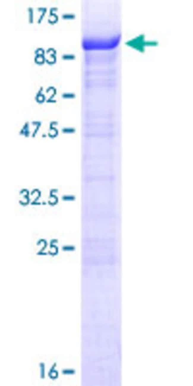 Abnova Human RIOK1 Full-length ORF (NP_113668.2, 1 a.a. - 568 a.a.) Recombinant