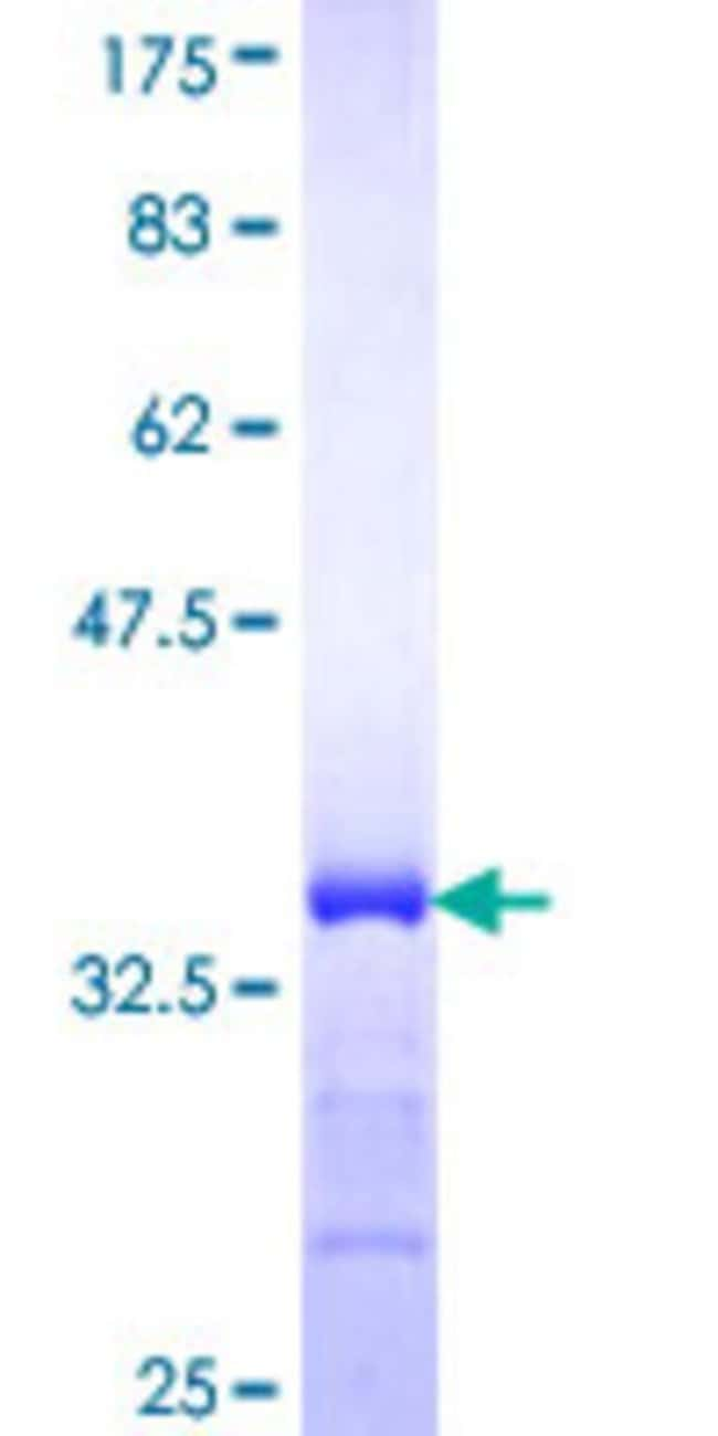 Abnova™Human L3MBTL2 Partial ORF (NP_113676, 642 a.a. - 705 a.a.) Recombinant Protein with GST-tag at N-terminal 10μg Abnova™Human L3MBTL2 Partial ORF (NP_113676, 642 a.a. - 705 a.a.) Recombinant Protein with GST-tag at N-terminal