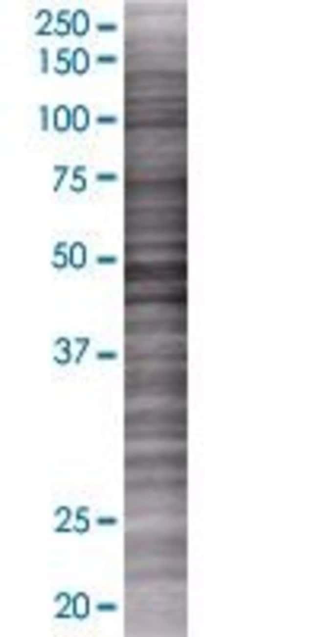 Abnova RBP5 293T Cell Transient Overexpression Lysate (Denatured) (T01)