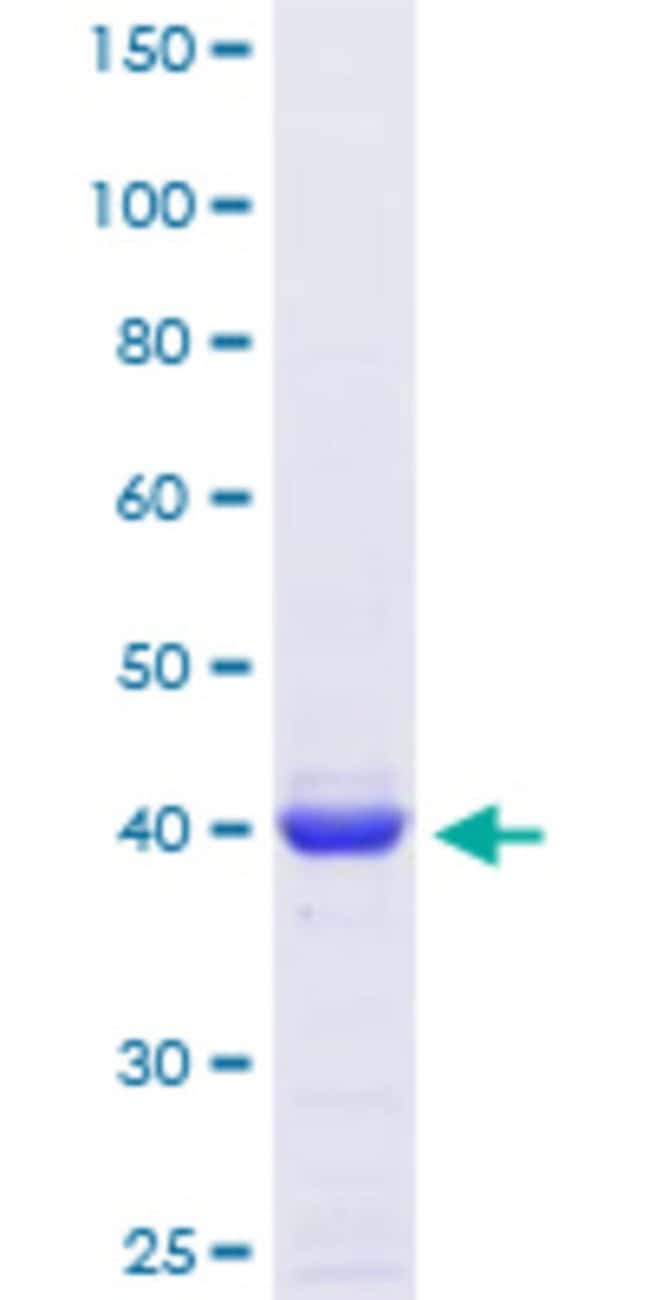 Abnova™Human ANGPTL6 Partial ORF (NP_114123, 211 a.a. - 299 a.a.) Recombinant Protein with GST-tag at N-terminal 25μg Abnova™Human ANGPTL6 Partial ORF (NP_114123, 211 a.a. - 299 a.a.) Recombinant Protein with GST-tag at N-terminal