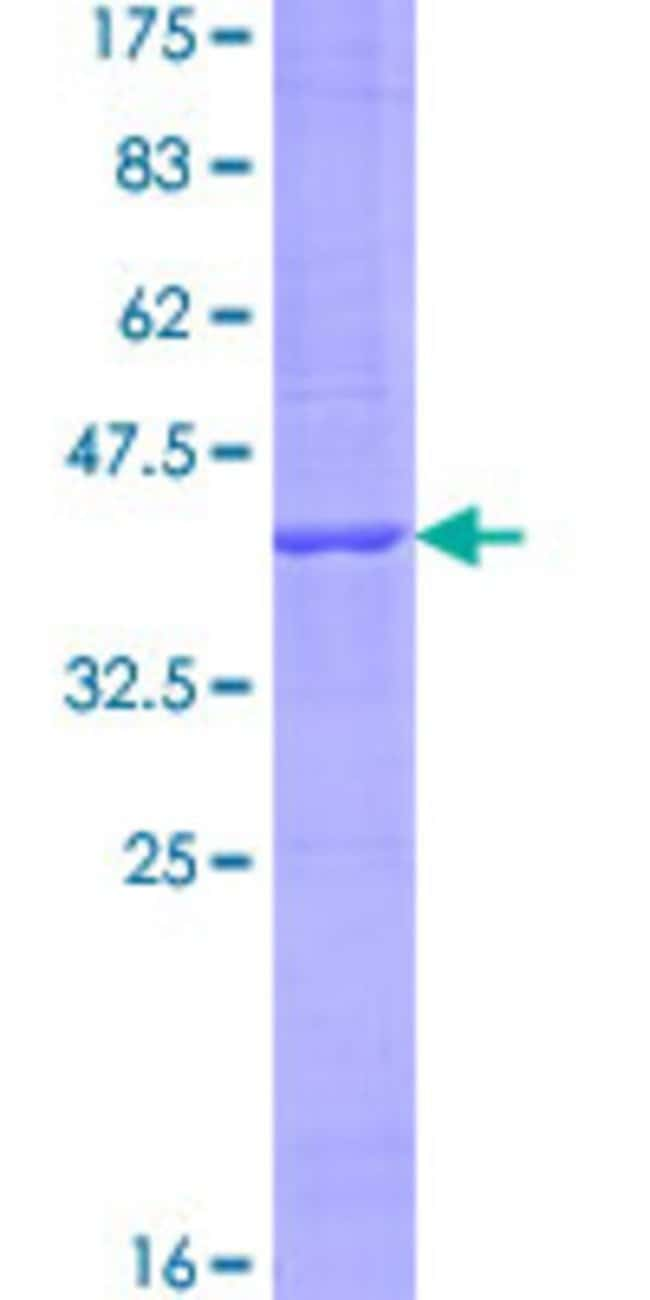 Abnova™Human KRTAP1-5 Full-length ORF (NP_114163.1, 1 a.a. - 174 a.a.) Recombinant Protein with GST-tag at N-terminal 25μg Abnova™Human KRTAP1-5 Full-length ORF (NP_114163.1, 1 a.a. - 174 a.a.) Recombinant Protein with GST-tag at N-terminal