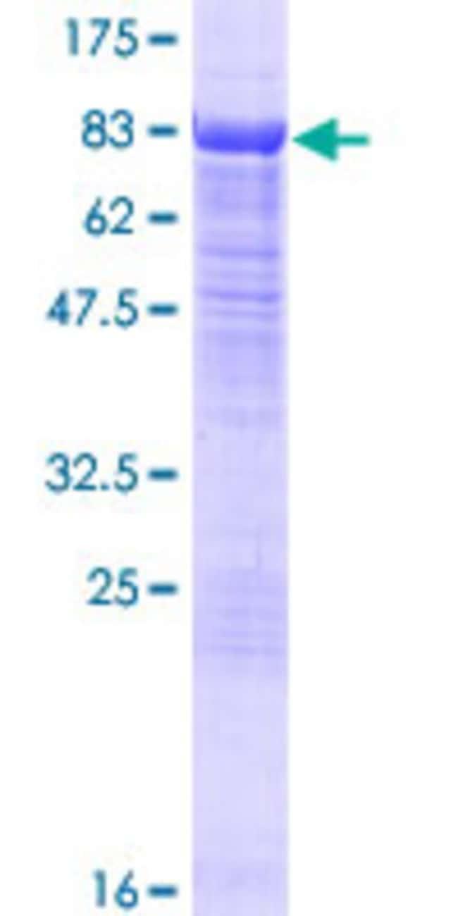 Abnova Human HDAC10 Full-length ORF (NP_114408.3, 1 a.a. - 669 a.a.) Recombinant