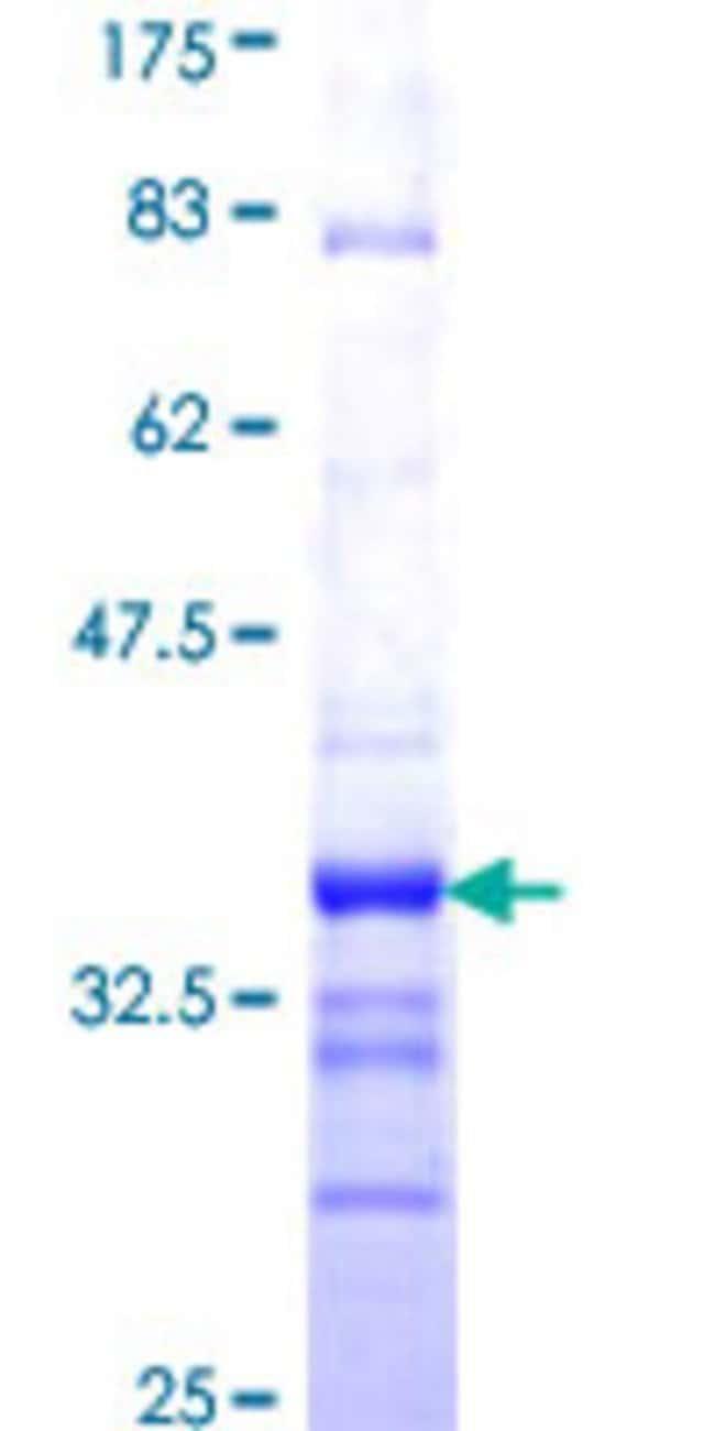 Abnova Human IMMP2L Partial ORF (NP_115938, 31 a.a. - 102 a.a.) Recombinant