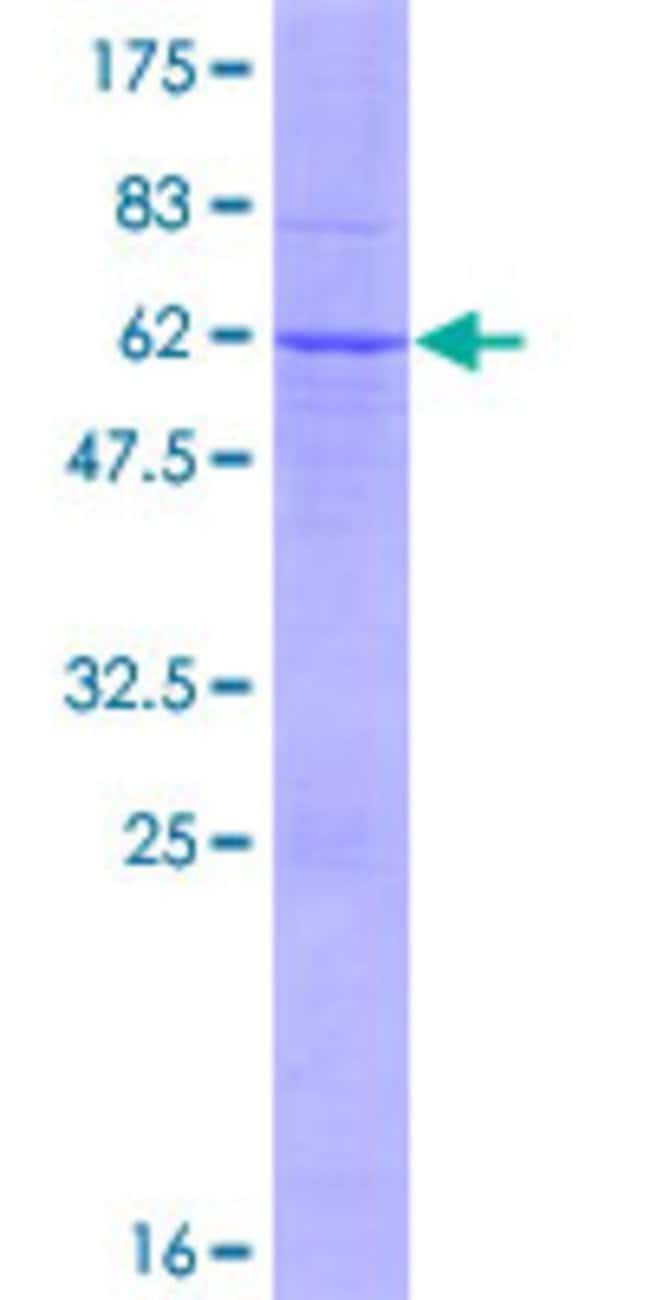 Abnova™Human TSSK6 Full-length ORF (NP_114426.1, 1 a.a. - 273 a.a.) Recombinant Protein with GST-tag at N-terminal 10μg Abnova™Human TSSK6 Full-length ORF (NP_114426.1, 1 a.a. - 273 a.a.) Recombinant Protein with GST-tag at N-terminal