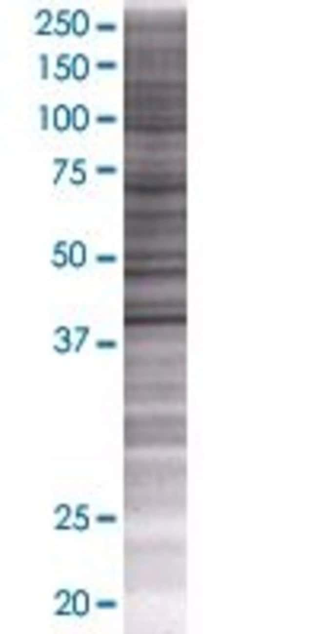 Abnova KBTBD7 293T Cell Transient Overexpression Lysate (Denatured) (T01)