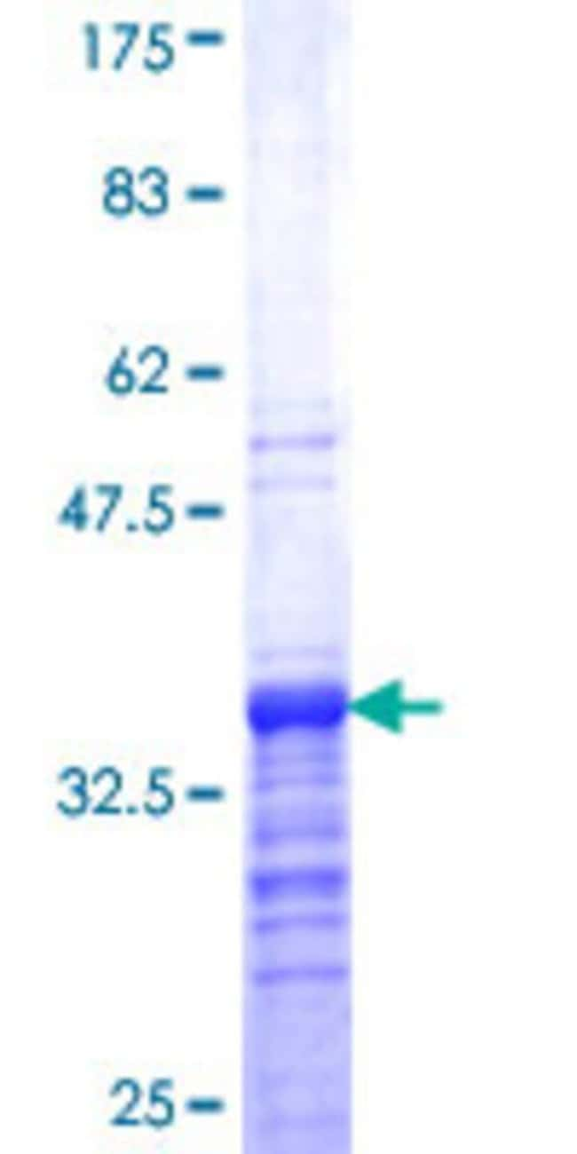 Abnova™ Human ZIC4 Partial ORF (NP_115529, 249 a.a. - 319 a.a.) Recombinant Protein with GST-tag at N-terminal 25μg Abnova™ Human ZIC4 Partial ORF (NP_115529, 249 a.a. - 319 a.a.) Recombinant Protein with GST-tag at N-terminal