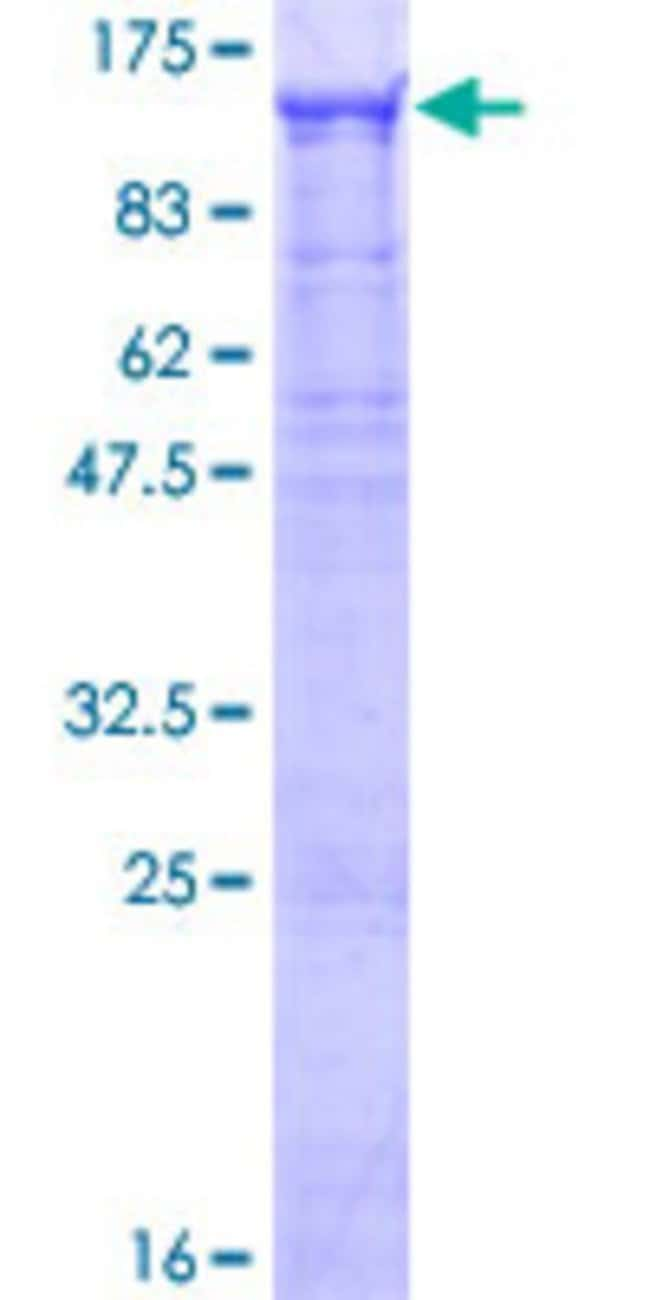 Abnova™ Human WDR75 Full-length ORF (NP_115544.1, 1 a.a. - 830 a.a.) Recombinant Protein with GST-tag at N-terminal 25μg Abnova™ Human WDR75 Full-length ORF (NP_115544.1, 1 a.a. - 830 a.a.) Recombinant Protein with GST-tag at N-terminal
