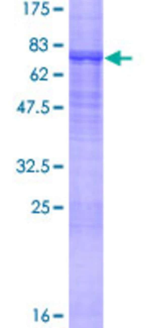 Abnova™Human MYST1 Full-length ORF (AAH37773.1, 1 a.a. - 467 a.a.) Recombinant Protein with GST-tag at N-terminal 25μg Abnova™Human MYST1 Full-length ORF (AAH37773.1, 1 a.a. - 467 a.a.) Recombinant Protein with GST-tag at N-terminal