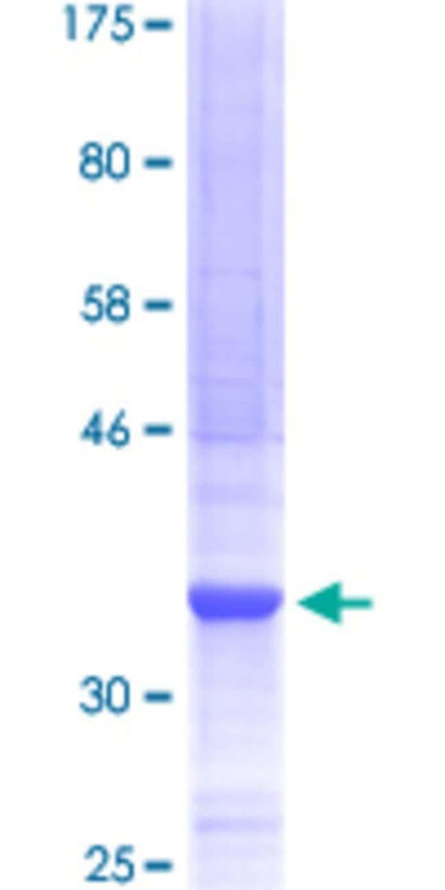 Abnova™Human ARID5B Partial ORF (XP_084482, 1483 a.a. - 1582 a.a.) Recombinant Protein with GST-tag at N-terminal 10μg Abnova™Human ARID5B Partial ORF (XP_084482, 1483 a.a. - 1582 a.a.) Recombinant Protein with GST-tag at N-terminal