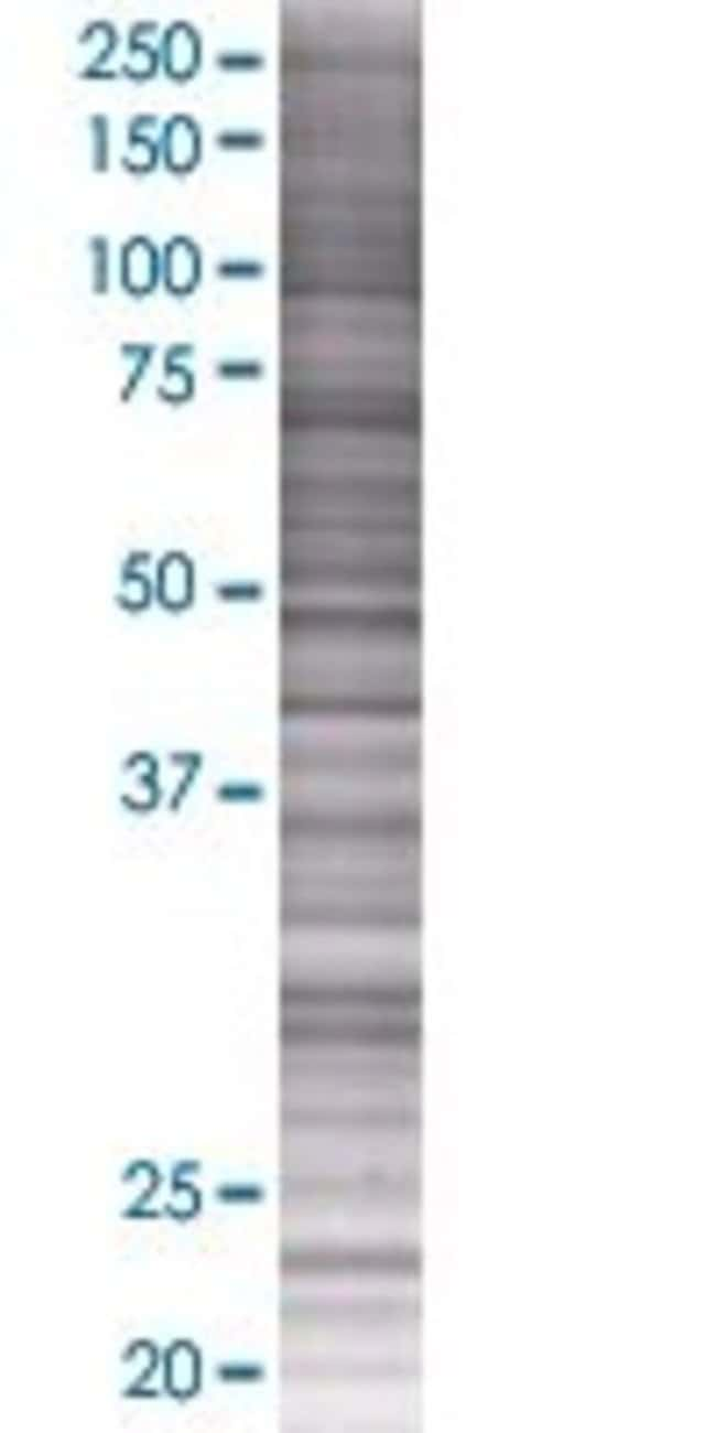 Abnova KIAA1109 293T Cell Transient Overexpression Lysate (Denatured) 100µL:Life