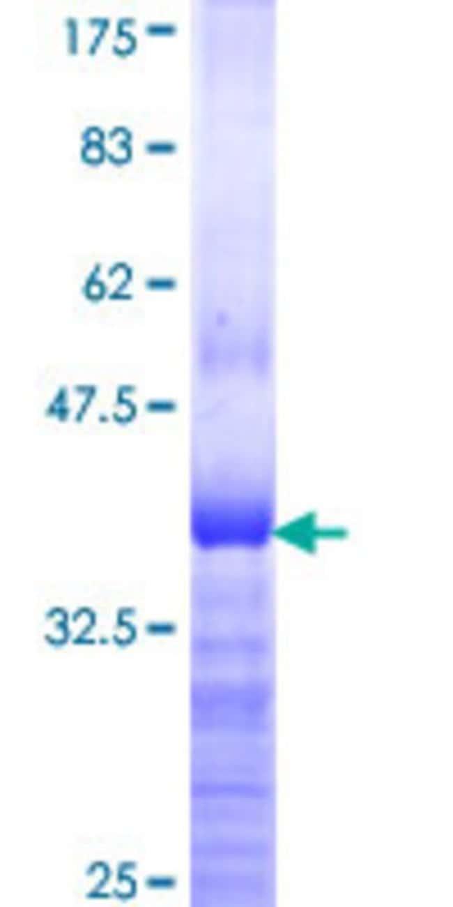 AbnovaHuman ASCC2 Partial ORF (NP_115580, 672 a.a. - 757 a.a.) Recombinant