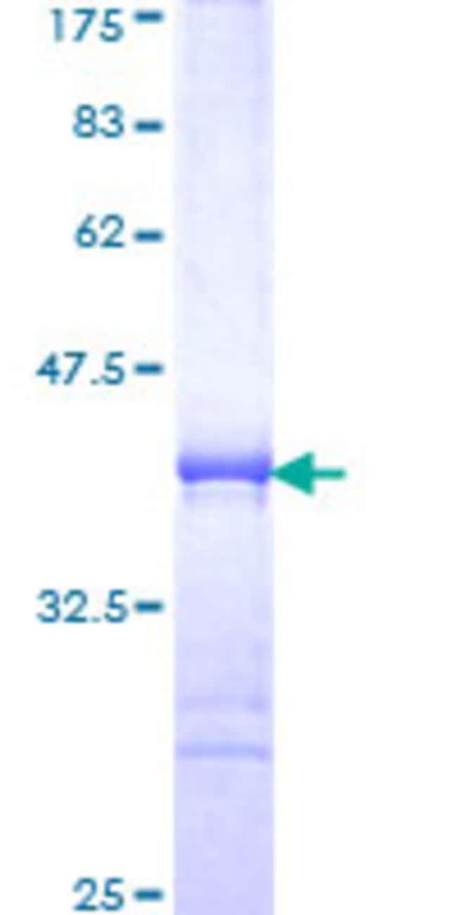 Abnova Human RKHD3 Partial ORF (NP_115622, 60 a.a. - 159 a.a.) Recombinant
