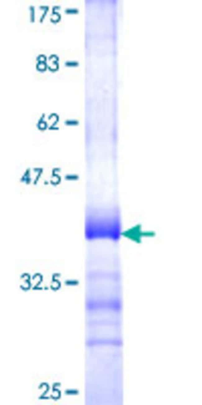 Abnova™Human TBC1D3 Partial ORF (NP_115634, 450 a.a. - 549 a.a.) Recombinant Protein with GST-tag at N-terminal 25μg Abnova™Human TBC1D3 Partial ORF (NP_115634, 450 a.a. - 549 a.a.) Recombinant Protein with GST-tag at N-terminal