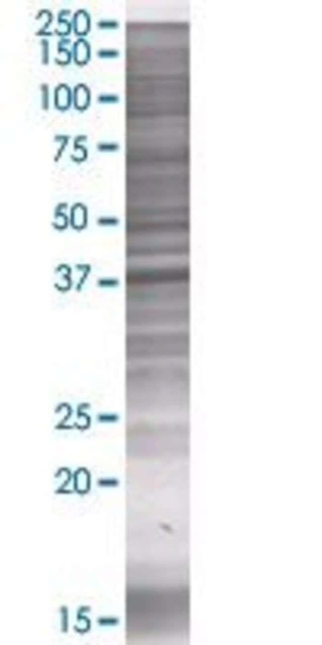 Abnova MGC3207 293T Cell Transient Overexpression Lysate (Denatured) (T01)