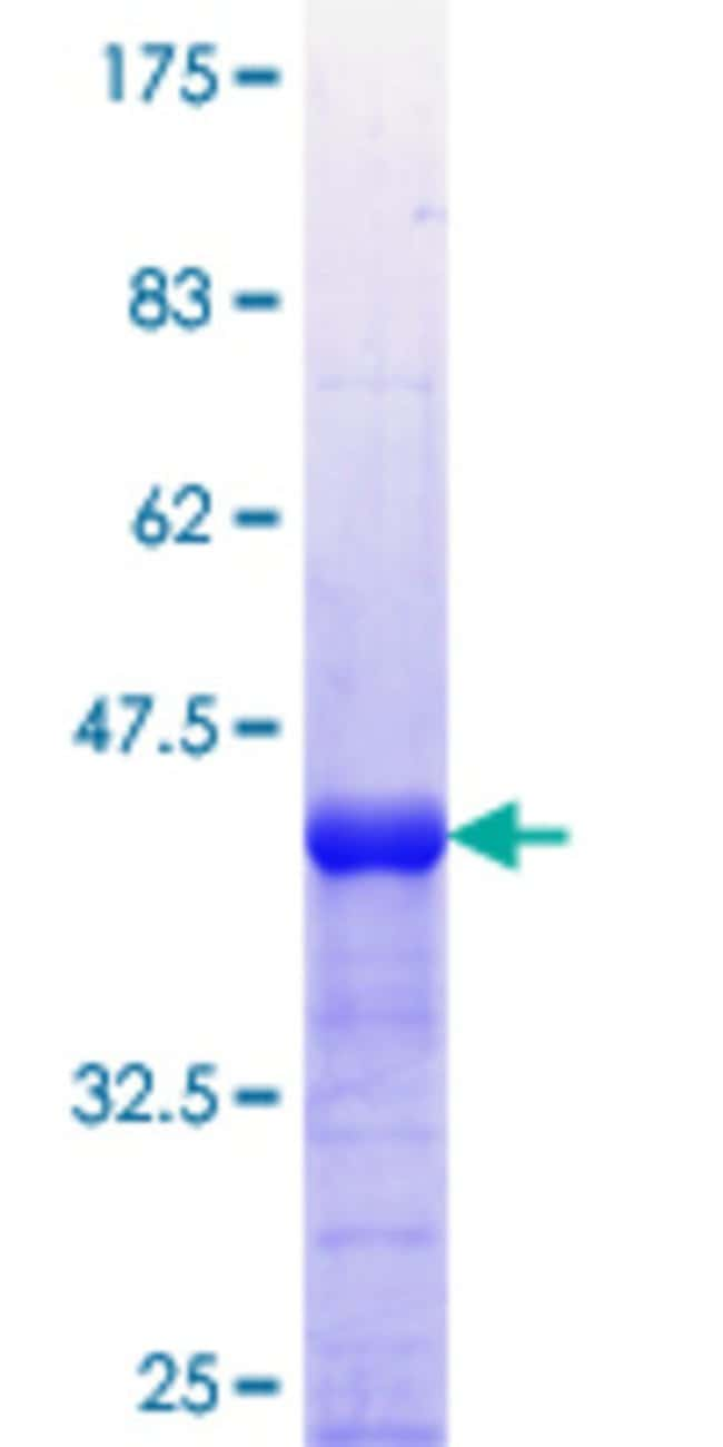 Abnova™Human CAMKK1 Partial ORF (AAH31647.1, 2 a.a. - 100 a.a.) Recombinant Protein with GST-tag at N-terminal 25μg Abnova™Human CAMKK1 Partial ORF (AAH31647.1, 2 a.a. - 100 a.a.) Recombinant Protein with GST-tag at N-terminal